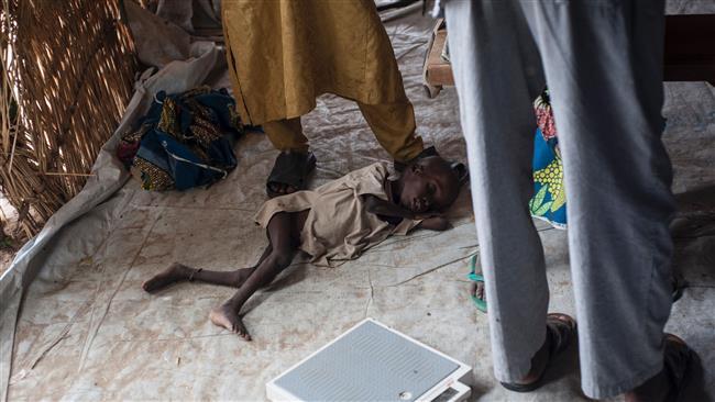 UNICEF says some 49,000 children will die of malnutrition in Nigeria