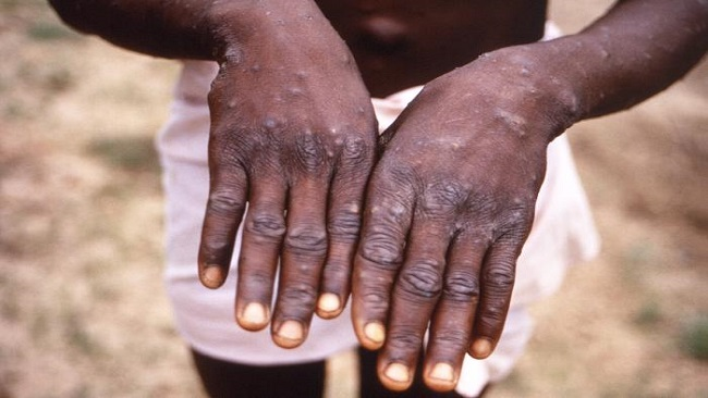 Monkeypox alert issued in French Cameroun