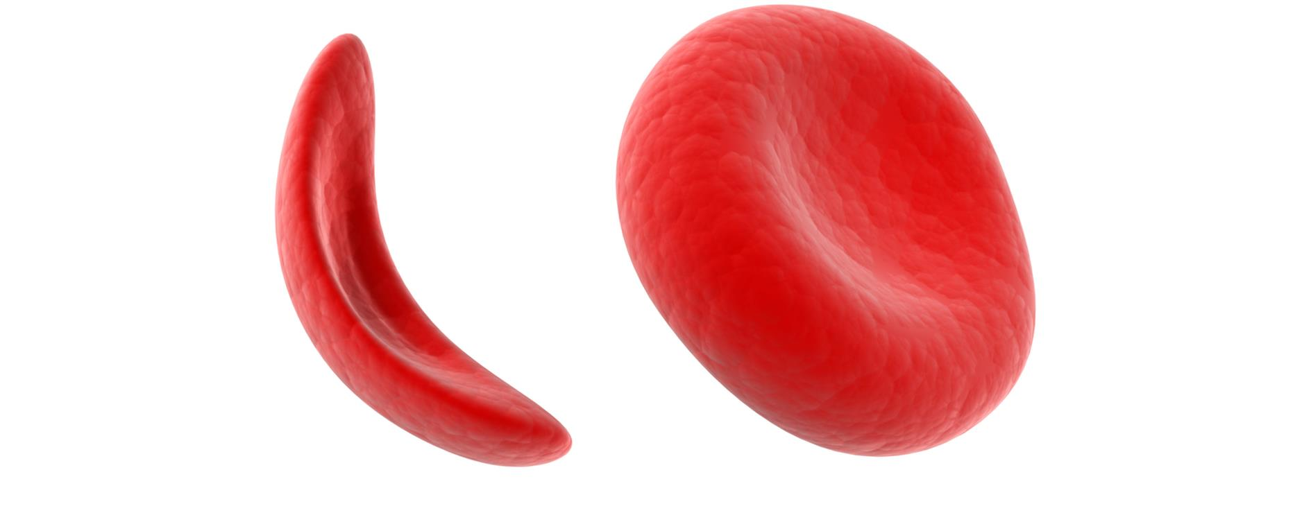400,000 Cameroonians living with the sickle cell disease