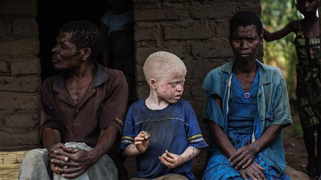 Malawi: Attacks on albinos unprecedented