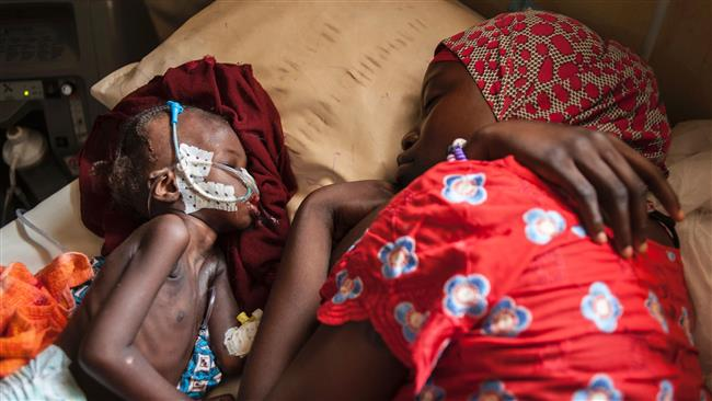 Nigeria: Donations needed to avert death of 75,000 starving kids
