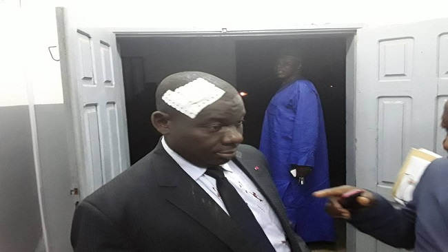 Hon. Richard Wallang's health: A CPDM volcano about to erupt