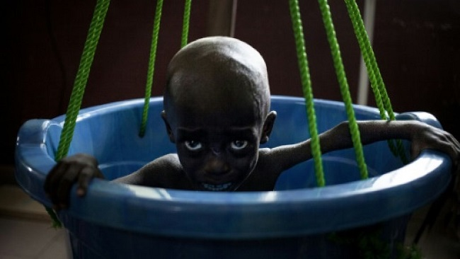 The battle to save Central African Republic's starving children